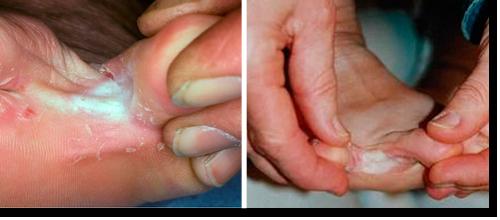 Les pieds sucent les orteils